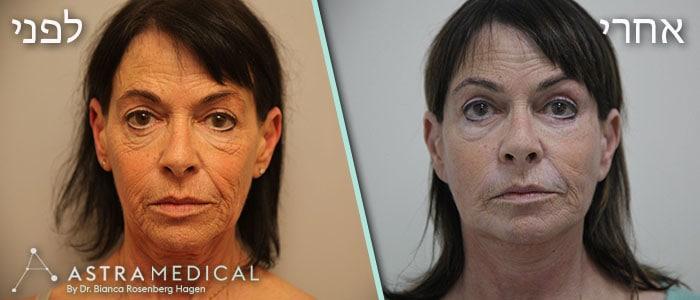 תמונות לפני אחרי ניתוח מתיחת פנים