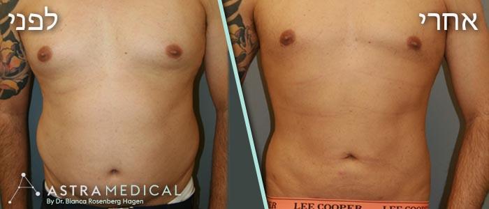 תמונות לפני אחרי-שאיבת שומן